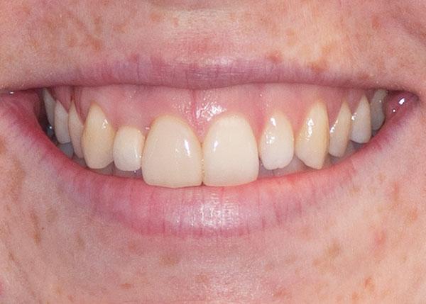bristol dental veneers results