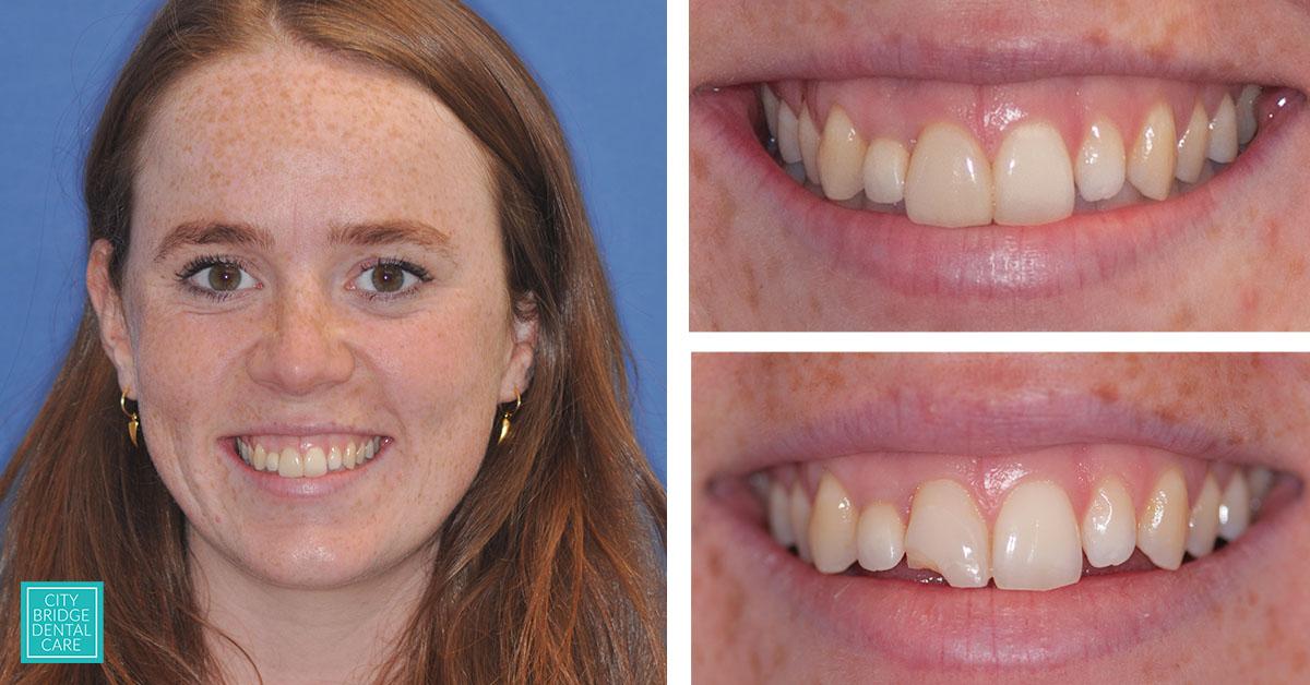 dental veneers bristol