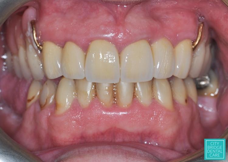 dental bridge bristol