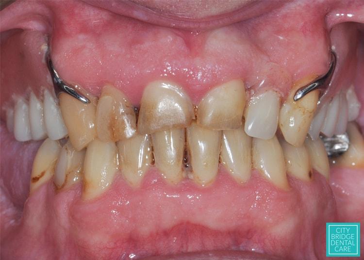 dental crowns bristol