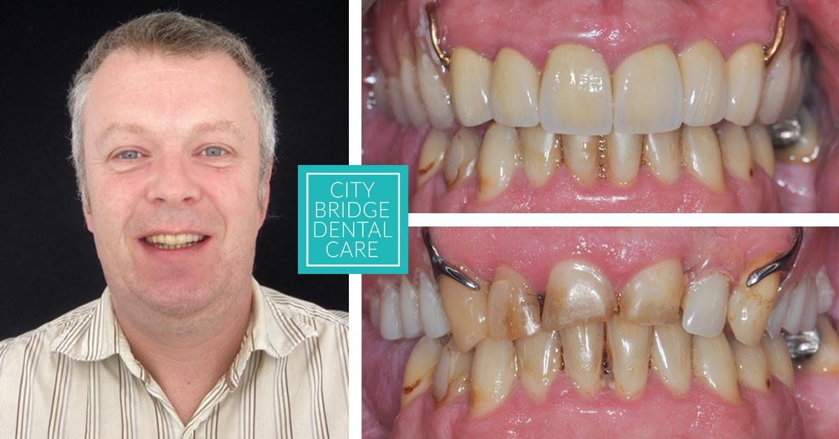 partial dentures bristol